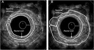 Male anal canal – middle position – regions of interest. (A) Rectal wall&#59; (B) Mesorectal fat.