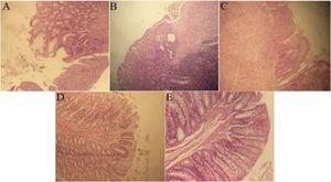 Histopathological lesion in the colon tissue of different groups. A (Asacol), ulceration with crypt disarray and goblet cell depletion; B (gel base) and C (negative control), surface ulceration, goblet depletion, irregularity in crypt architecture and inflammation; D (0.5% extract), regeneration of colonic mucosa with irregularity in crypt architecture, decreased goblet cells and increased inflammation; E (1% extract), restoration of normal colon structure in 1% gel extract (H&E ×400).