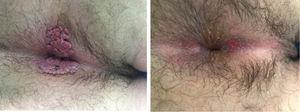 Image on the day of diagnosis and then after the fifth week.
