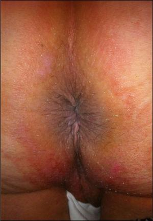A follow-up image at three months after surgery that reveals a well-healed anastomosis with no sphincter dysfunction.