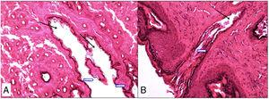 Photomicrograph demonstrating the measurement of the fistulous tract area after treatment. (A) GCo animal; (B) GAV animal; arrows indicate the patent fistulous tract (HE 400×).