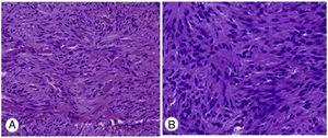 (A) Gastric gist stained with CD-117; (B) Gastric gist stained with CD-34.