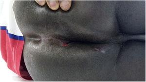 Late postoperative period of patient with anal fistula related to mycobacterial infection. Patient was treated for 6 months with tuberculostatics.