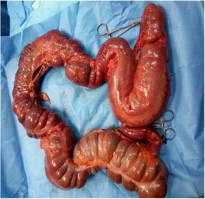 Total colectomy.