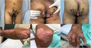 Verrucous infections in the upper 3 images. And psoriasis lesion in the under 3 images.