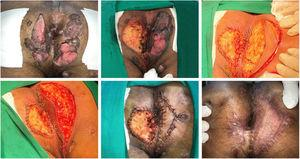 In the perianal region, we performed the resection of the entire lesion on the right side, and on the left side we allowed healing to occur by second intention.