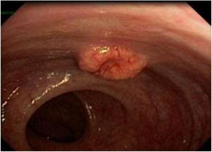 Proctoscope view of the rectal tumor.