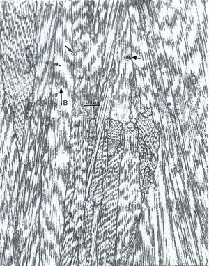 Optical micrograph showing columnar grains (GB) and directional carbide (Cr23C6) architectures within these grains parallel to the build direction for EBM-fabricated Co-Cr alloy. The image plane is parallel to the vertical specimen (product) plane.