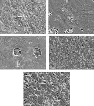 SEM micrographs showing the microstructures of the as-received (a) 50Ti–50Ni, (b) 50Ti–45Ni+5Al, (c) 50Ti–40Ni+10Al, (d) 50Ti–35Ni+15Al, and (e) 50Ti–30Ni+20Al alloys.