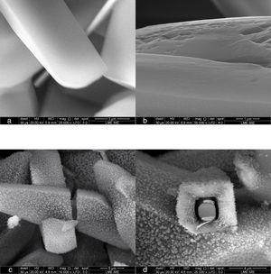 FEG-SEM micrographs of Ti/brushite samples converted to hydroxyapatite in the presence of alkaline solution at the following temperature/time: (a) as-deposited; (b) 60°C, for 10min (untransformed); (c) 50°C, for 70min (partially transformed: 40% of HA), longitudinal view; (d) 50°C, for 70min (partially transformed: 40% of HA), cross-section view.