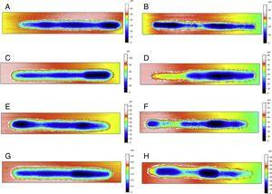 Profilometry analysis for samples submitted to tribocorrosion in all studied conditions.