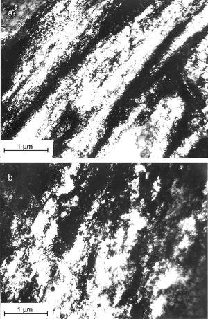 Banded dislocation structures for TEM observation with {111} diffraction pattern of specimens: (a) deformed up to transition point of ɛp=22% at 500°C and (b) deformed to fracture, ɛp=32% at 500°C.