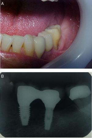 Example 4 clinical results 3 years after the surgery of dental implant treatment with ultrafine grain size.
