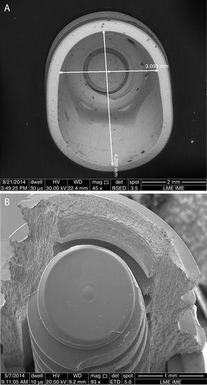 Surface morphology after mechanic testing. (A) Deformed dental implant after compression test. (B) Fractured dental implant after fatigue test.