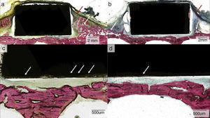 Low- and high-magnification optical micrographs for (a, c) as-cast WE43 and (b, d) WE43-T5.