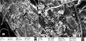 SEM image of Bauhinia vahlii weight fiber at magnification 952× (a) and 2.48k× (b).