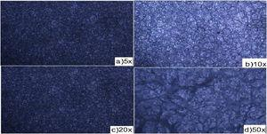 Optical micrographs of Al alloy with 1.5 Cefadroxil+1.5 Dicloxacillin inhibitor after weight loss experiment.
