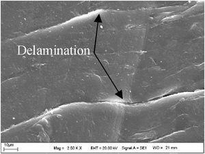 Delamination of UHMWPE insert codyle surface.