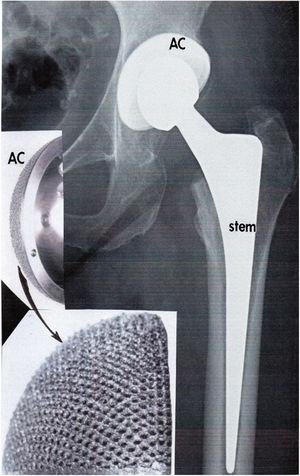 X-ray image showing total hip arthroplasty utilizing a porous, EBM-fabricated Ti-6Al-4V acetabular cup (AC) fitted with a highly-cross-linked polyethylene liner and head attached to Ti-6Al-4V femoral stem which can be variously fabricated by EBM to have varying open-cellular (porous) design features. From Murr [9].