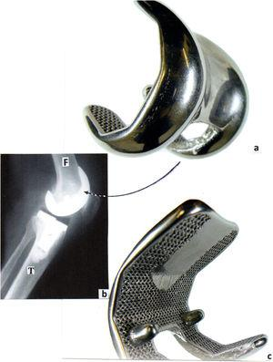 Co-Cr-Mo alloy EBM-fabricated femoral mesh appliance as a component in total knee arthroplasty (a and c). (b) Shows a corresponding total knee X-ray image. The space between the femoral (F) appliance (a) and the tibial (T) insert represents the highly crosslinked, high molecular weight polyethylene insert which is invisible to the X-rays. From Murr [42].