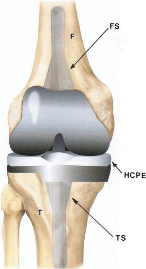 Model view for total knee replacement arthroplasty involving a special, porous femoral long-stem Co-Cr-Mo alloy appliance (FS) and porous, long-stem Ti-6Al-4V tibial appliance (TS). The highly cross-linked polyethylene insert on the tibial appliance table is denoted HCPE. F and T designate femur and tibia bones; respectively. Adapted from Health Direct, Australia (see healthdirect.gov/surgery/revision-total-kneereplacement).