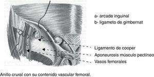 Anillo crural y ligamento de Gimbernat.