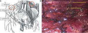 a. Ilustración de la disposición de los nervios del plexo lumbar. Se indica con un círculo la zona de localización de los nervios y de sección (cortesía del Dr. Acevedo). b. Identificación de los nervios iliohipogástrico e ilioinguinal sobre la superficie del músculo cuadrado lumbar, de recorrido paralelo y hacia la espina ilíaca anterosuperior. Las flechas indican los nervios.
