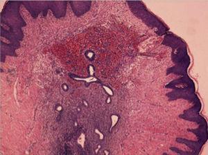 Estudio anatomopatológico. Estudio microscópico: presencia en la dermis de glándulas endometriales rodeadas de estroma. 100× (hematoxilina-eosina).