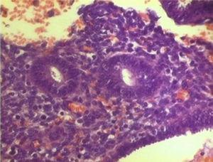 Estudio anatomopatológico. Estudio microscópico: glándulas endometriales revestidas de epitelio cilíndrico rodeadas de denso estroma con fenómenos hemorrágicos. 200× (hematoxilina-eosina).