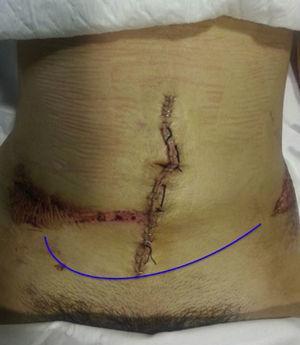 Exploración física de la paciente. Se advierte claramente el signo del cinturón de seguridad sobre la cresta ilíaca (herida cutánea, abrasión y hematoma regional en el trayecto del cinturón) tras un accidente de tráfico.