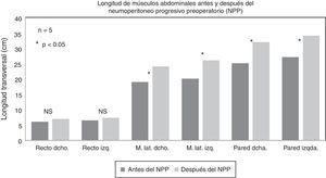 Gráfico que demuestra la elongación de los grupos musculares en la pared abdominal, antes y después del NPP (en cm).