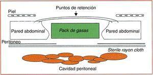 Cierre temporal de tipo visceral packing. Tomada de Bender et al.30.