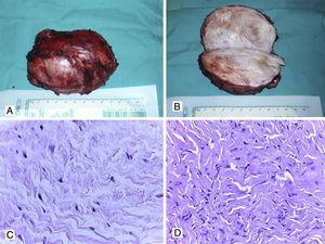 A, B. Tumor desmoide de pared abdominal (aspecto macroscópico). C, D. Aspecto histopatológico con HyE de fibromatosis de pared abdominal (40x).