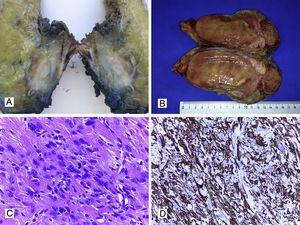 A. Leiomiosarcoma de pared (aspecto macroscópico). B. Liposarcoma con zonas de color amarillento similares a tejido graso normal y otras zonas con aspecto sarcomatoso. C. Corte histológico con HyE de un leiomiosarcoma con presencia de células fusiformes y presencia de mitosis (40x); D. Tinción IHQ positiva para actina de músculo liso en leiomiosarcoma de pared (40x).