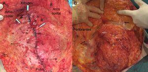 A. Recomendación de limitar la disección suprafascial medial del abdomen para preservar la vascularización. Los límites superior (xifoides) y lateral (arco costal) deben respetarse, pero el lumbar debe evitarse en lo posible (flechas). B. Localización de las perforantes de gran calibre (flechas).