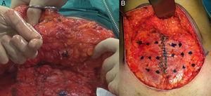 Fijación del colgajo de la abdominoplastia. A. Punto de Baroudi para fijar el colgajo. B. Mapeo para el diseño de los puntos de fijación.