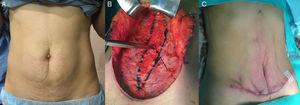 Escenario I. A. Mujer con exceso de piel infraumbilical y pequeña hernia umbilical. B. Disección de la pared y orificio herniario. C. Miniabdominoplastia extendida sin incisión periumbilical.