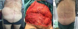 Escenario IV: Eventración lateral en un varón de 80 años con 10 cirugías previas, fístulas y rechazo de mallas. A. Se muestra el defecto lateral ilíaco derecho. B. El colgajo elevado muestra el defecto derecho y la debilidad izquierda (bilateral) (flechas negras). C. Resultado al mes de la cirugía de reconstrucción con reparación preperitoneal.