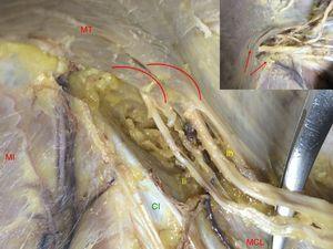 Forma de pasar los nervios a situación intermuscular. Cabestrillo del músculo transverso y fascículos en relación con el nervio. En el borde superior izquierdo: detalle. Las flechas y arcos muestran las fibras musculares (lado derecho. CI: cresta ilíaca; Ih: nervio iliohipogástrico; Ii: nervio ilioinguinal; MCL: músculo cuadrado lumbar; MI: músculo ilíaco; MT: músculo transverso).