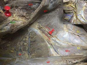 Recorrido intermuscular del nervio. Se muestra su dirección entre los músculos hasta alcanzar la espina ilíaca anterosuperior. En el borde superior izquierdo: detalle de la relación con ramas vasculares de los vasos iliolumbares (lado derecho. AG: nervios abdominogenitales; CI: cresta ilíaca; EIAS: espina ilíaca anterosuperior; MCL: músculo cuadrado lumbar; MI: músculo ilíaco; MOI: músculo oblicuo interno; MP: músculo psoas; MT: músculo transverso; SC: nervio 12.o o subcostal).