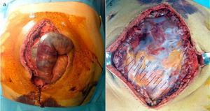 (a) Placas de necrosis intestinal. (b) Bolsa de Bogotá.