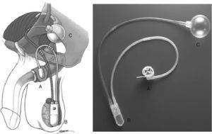 Esfínter urinario artificial AMS 800™ (imágenes obtenidas del manual AMS 800™ de American Medical Systems). A: Manguito oclusivo. B: Bomba de control. C: Balón regulador de presión.