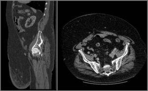 Corte sagital y trasversal del tac preoperatorio. Atrofia de musculatura de pared abdominal, sin imagen de eventración. Estructuras viscerales intraabdominales sin hallazgos patológicos.