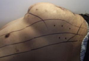 Infiltración de toxina botulínica (Botox®) un mes antes de la cirugía de plastia de pared abdominal, siguiendo el mapeo ya establecido.