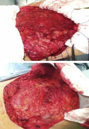 Separación de componentes o plicatura del saco herniario.