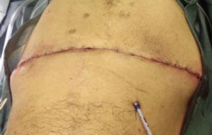 Colocación de puntos simples en tejido celular subcutáneo y cierre de la piel.