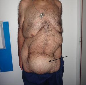 Caso 1. Tumor abdominal voluminoso (indicado por la flecha).