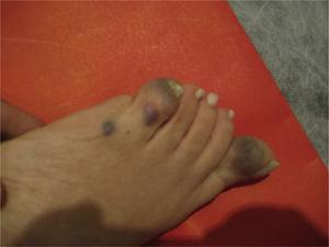 Rounded bluish lesions deforming a foot.