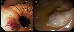 Endoscopic lesions. A) The image of a rounded, bluish, soft and depressible lesion measuring 2cm in diameter on the anterior surface of the antrum. B) Similar lesions on the colon.