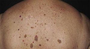 Dermal lesions on the back (seborrheic keratoses).